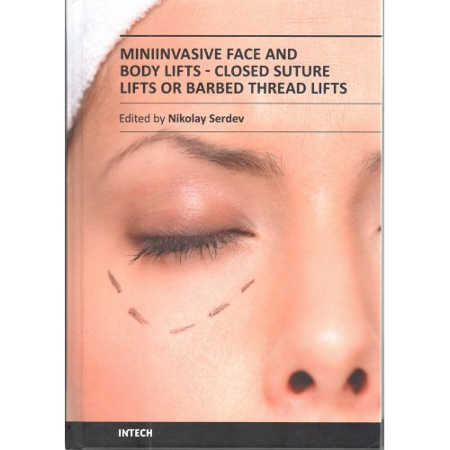 Miniinvasive Face and Body Lifts - Closed Suture Lifts or Barbed