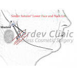 Lower SMAS Face and Neck Lift Instructions + Video