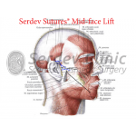 Mid-Face SMAS Suture Lift Instructions + Video