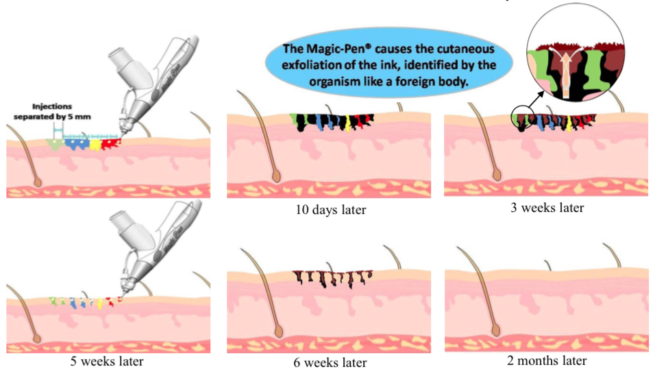 How Tattoos are removed with MagicPen®