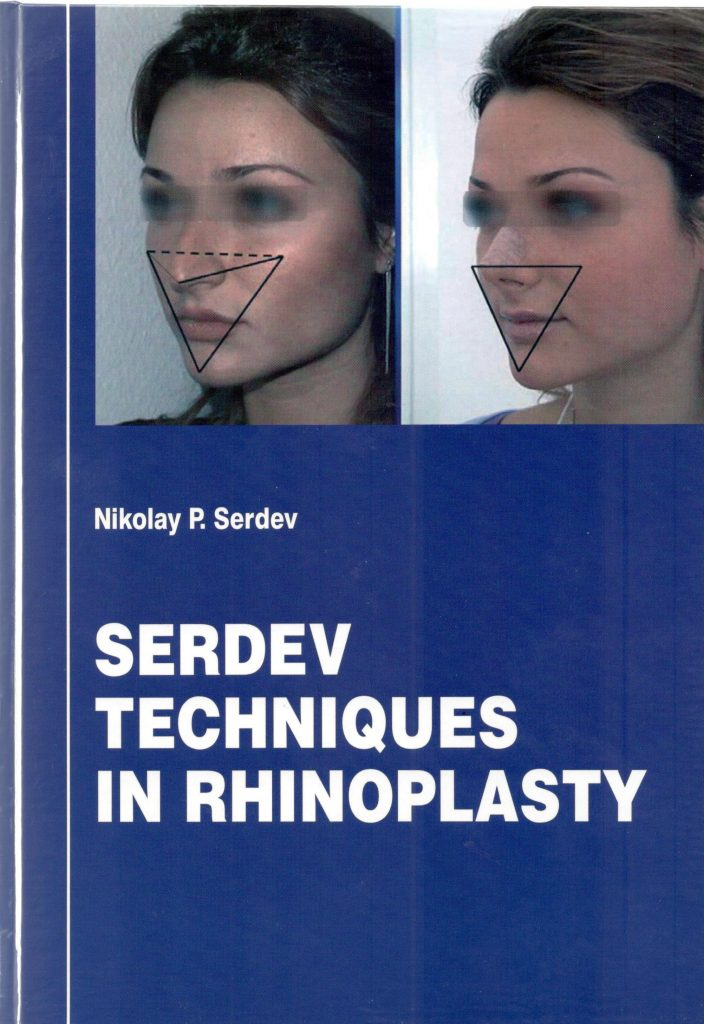 Serdev Techniques in Rhinoplasty cover